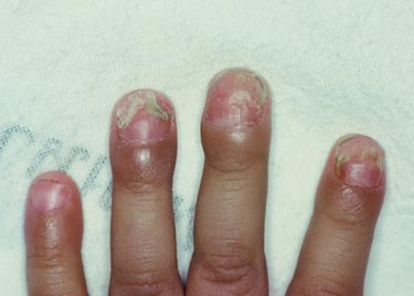 nail bed infection